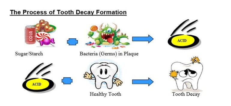 Tooth Decay Chart
